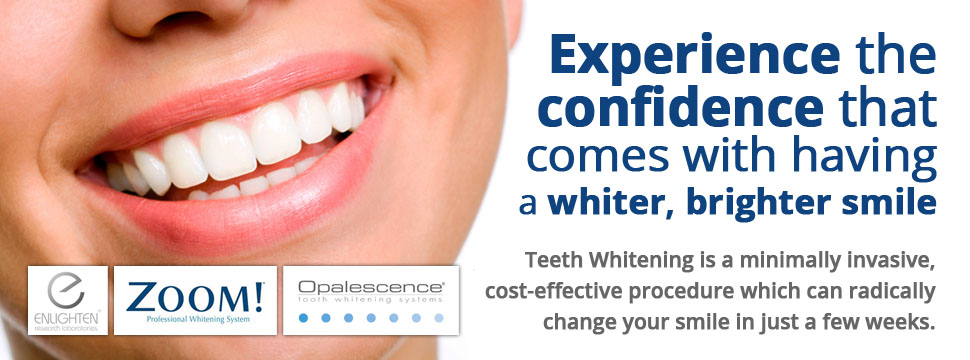 Teeth Whitening in Stafford