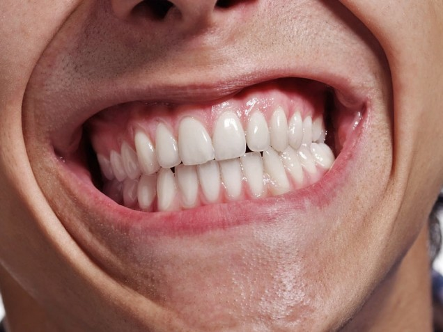 Teeth grinding due to stress